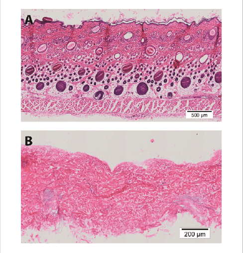 histology of processed rat skin Representative figures of H E of full thickness rat